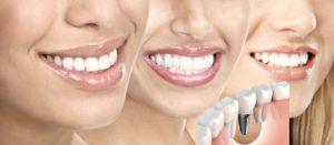 implanturi-dentare-perfecte-dent-estet