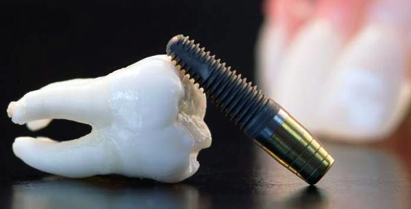 tratament-implant-dentar