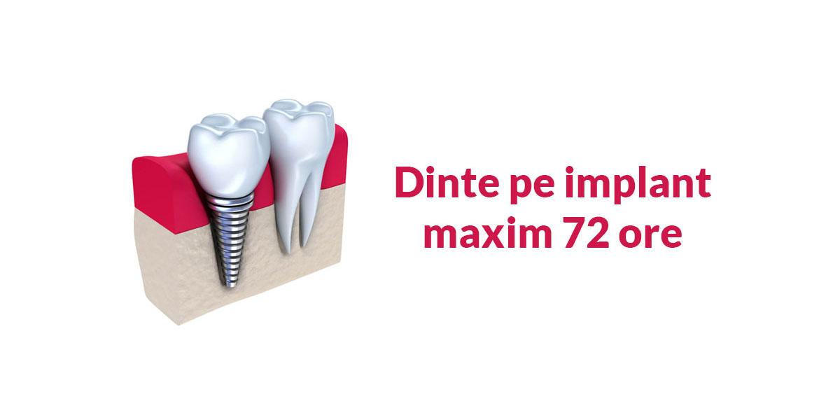 implant-dentar-72-ore